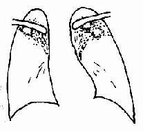 慢性纤维空洞型肺结核