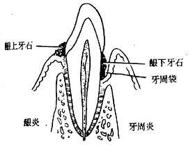 龈炎与牙周炎的区别