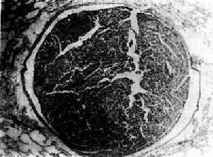 肺小动脉腔内肝癌细胞栓子