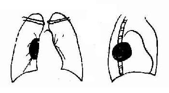 纵隔神经鞘瘤