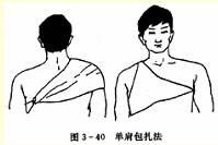 单肩毛巾包扎法