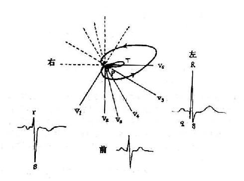 横面心向量环与胸导联心电图的关系