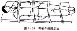 脊椎骨折固定法