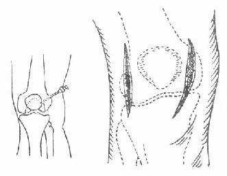 膝关节穿刺及切开引流