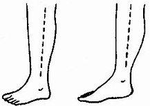 小腿深筋膜切开减压术皮肤切口