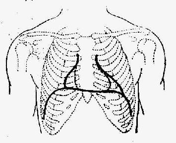 心包积液的心脏浊音界示意图