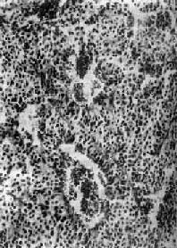 垂体嫌色细胞腺瘤