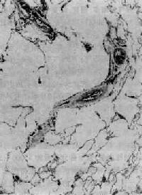 腺泡中央型肺氣腫