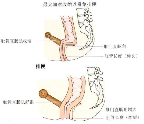 肛门直肠角