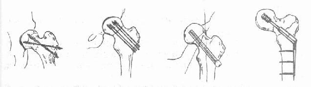 股骨颈骨折内固定方式