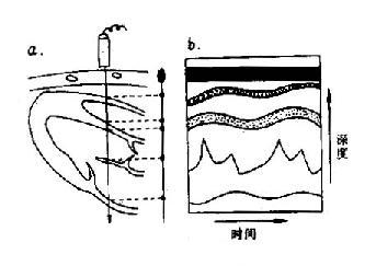 M型超声心动图示意图