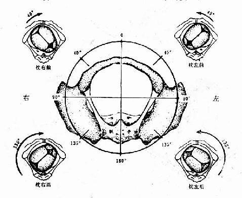 確定胎方位示意圖(骨盆由下往上看)