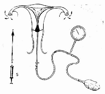 输管卵通气装置示意图