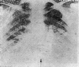 AIDS患者合并肺炎的X线表现