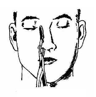 鼻骨复位钳复位法
