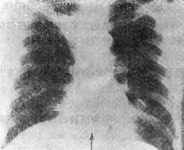 支气管粘液栓引起肺不张