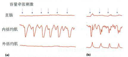 一例大便失禁患者的直肠括约肌反射