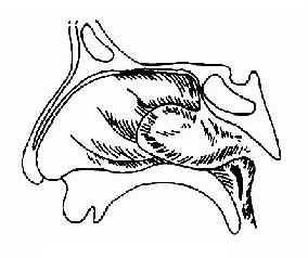 鼻咽血管纤维瘤
