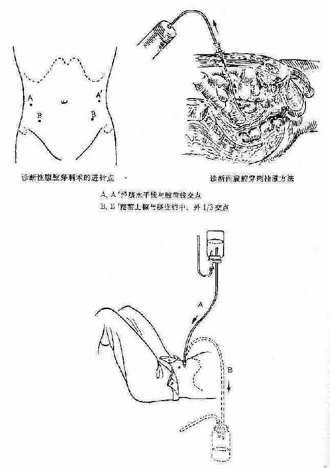 诊断性腹腔浣洗术