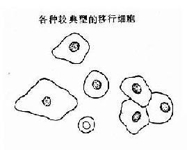 正常人尿液内的各种移行细胞示意图