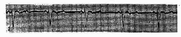 Ⅱ度Ⅱ型房室传导阻滞(莫氏Ⅱ型)