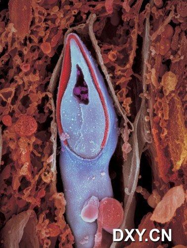 精子的縱斷剖面,精子的遺傳物質存儲在「頭部」