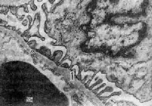 正常腎小球濾過膜
