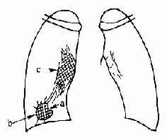 周圍型肺癌