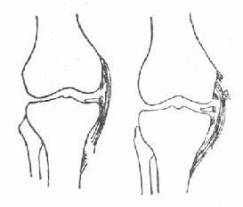 内侧副韧带部分断裂