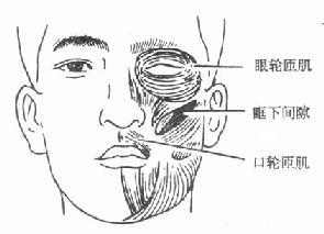 眶下蜂窝织炎发生的部位