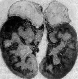 双侧肾上腺结核