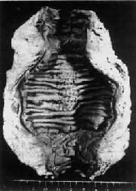 肠增生型结核