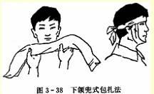 下颌毛巾兜式包扎法