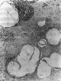 肝泡狀棘球蚴病
