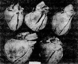 正常与肺源性心脏病的心脏
