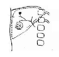 肝海绵状血管瘤(动脉期)