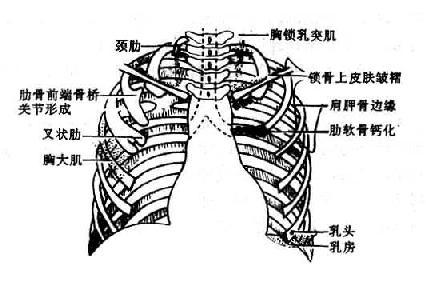 可能引起误诊的胸部软组织和骨骼影像