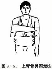 上臂骨折固定法