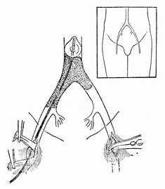 腹主动脉骑跨栓塞自右股总动脉取栓