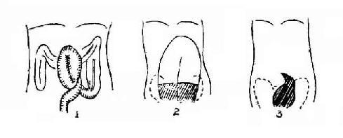 示直肠乙状结肠交接处梗阻、其上端逐渐变尖如鸟嘴状,有时可见到旋转的粘膜纹