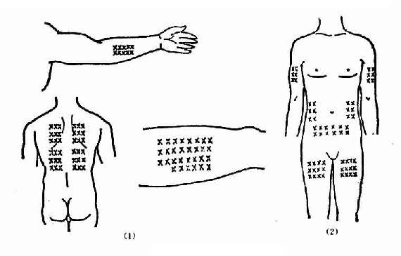 皮下注射部位