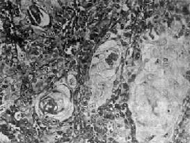 鼻咽高分化鱗狀細胞癌