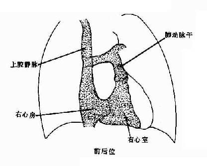 正常腔静脉,右心房、室造影示意图