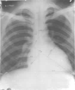 运动员心脏放射线检查