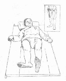 股骨颈骨折伤肢的典型外旋畸形