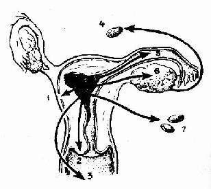 子宫体癌转移途径
