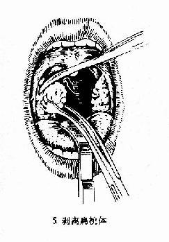 扁桃体切除术(剥离法)