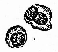 正常淋巴结穿刺涂片常见手细胞