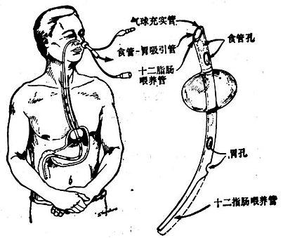 三腔胃造口管