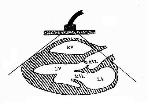 心超声胸骨旁长轴断面示意图